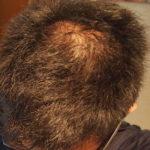 AGA治療体験記28日目:ミノタブ・フィナステリドの副作用・初期脱毛はあったのか?