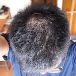 AGA治療体験記55日目:育毛サプリを変更予定