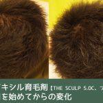 キャピキシル育毛剤【フィンジアとザ・スカルプ5.0C】の効果はあったのか?|4ヶ月使ってみた結果