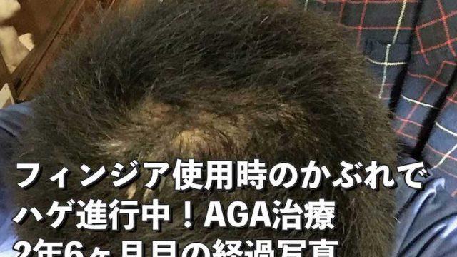 AGA治療開始912日目